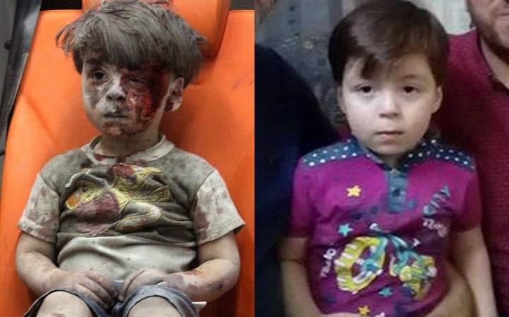 Photo of Remember Omran in Syria's Aleppo?!